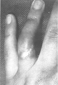 CIRCUMFERENTIAL ELECTRIC BURNS OF THE RING FINGER